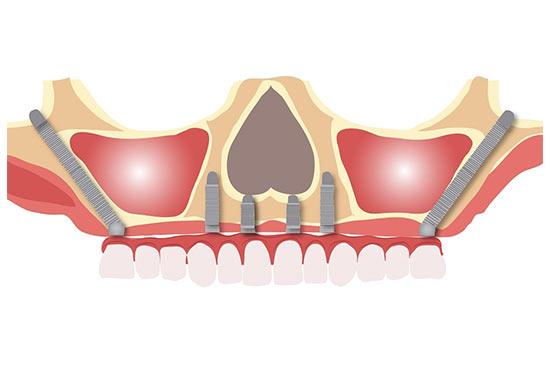 implante-cigomatico