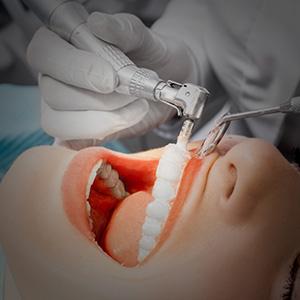 limpieza-dental-home