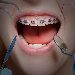 ortodoncia home